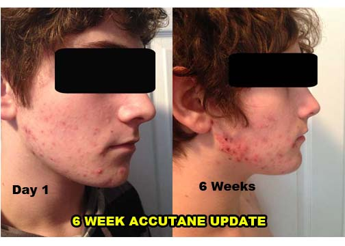 accutane in the summer