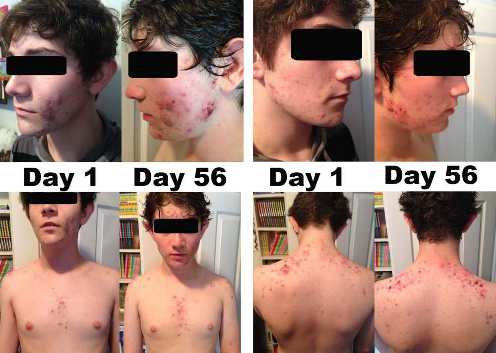 8 Weeks on Accutane Before and After