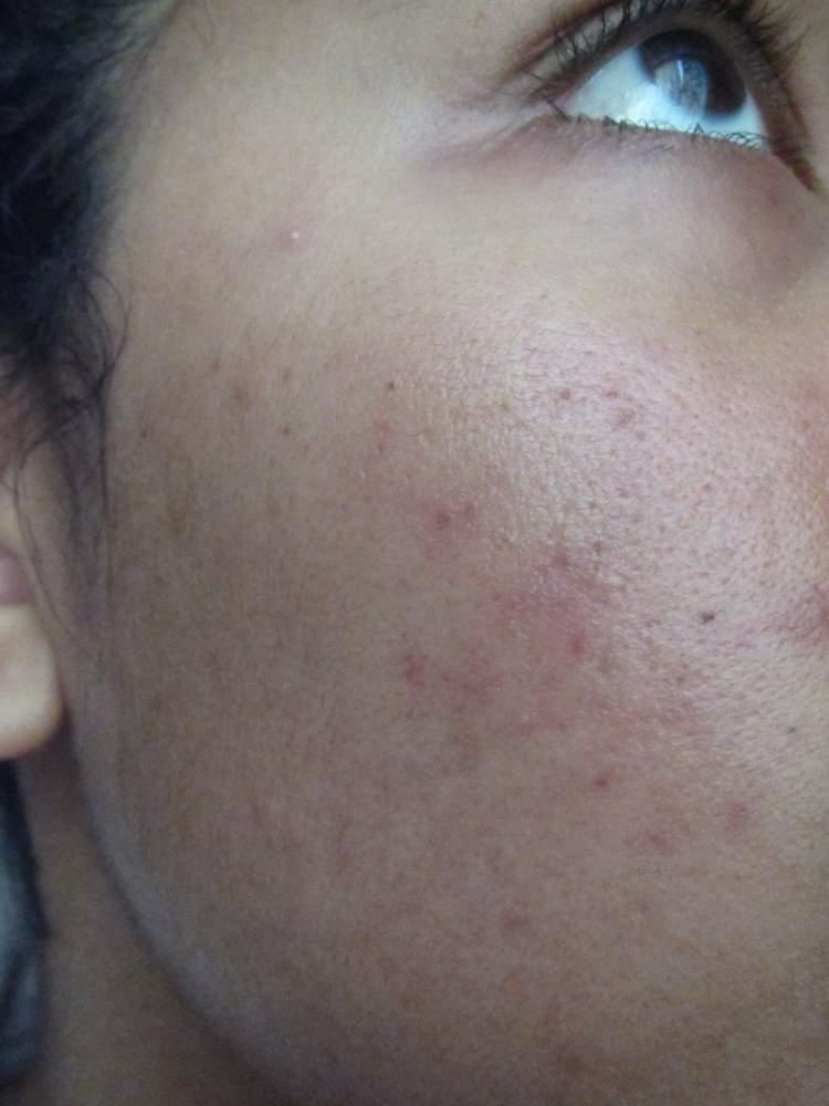 Right cheek (side)