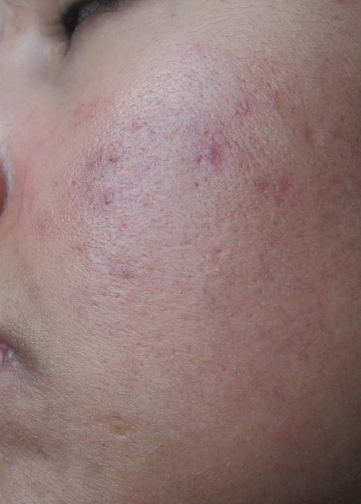Left cheek (side)