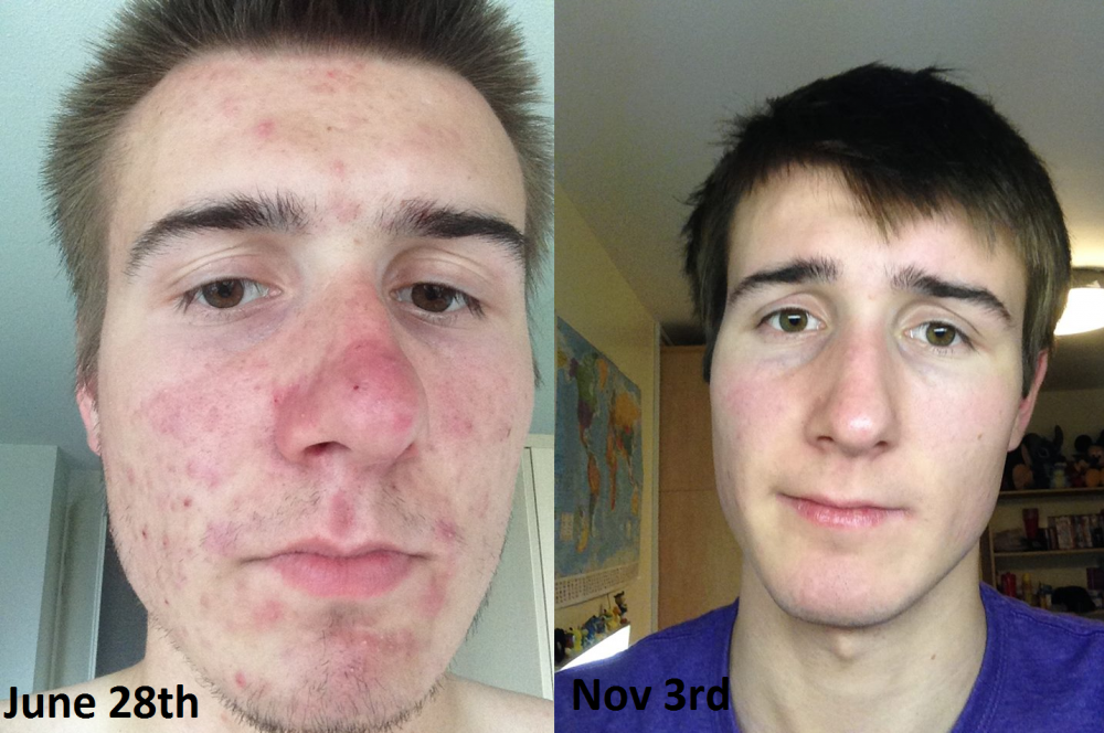 accutane mild acne how long