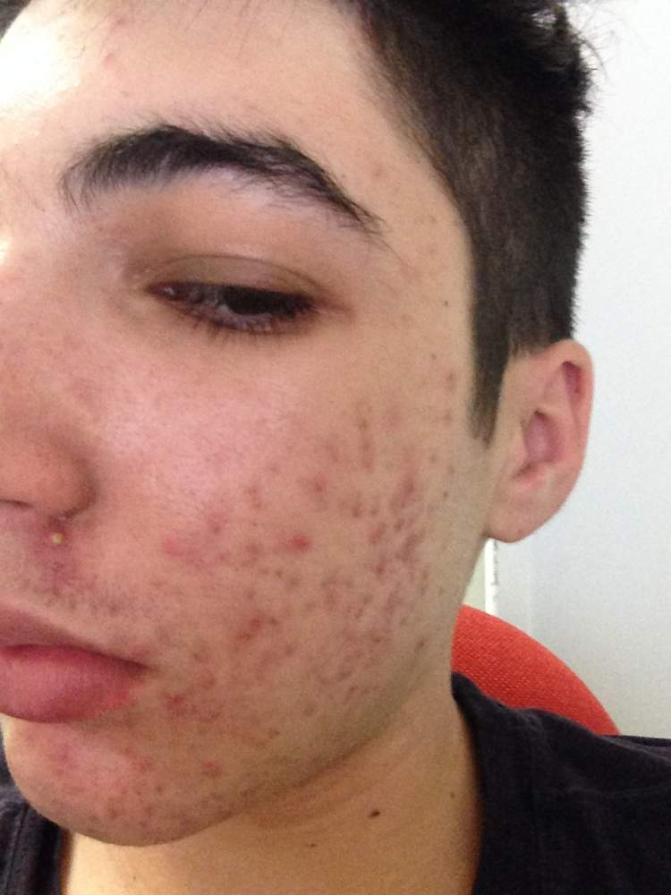 First day of accutane