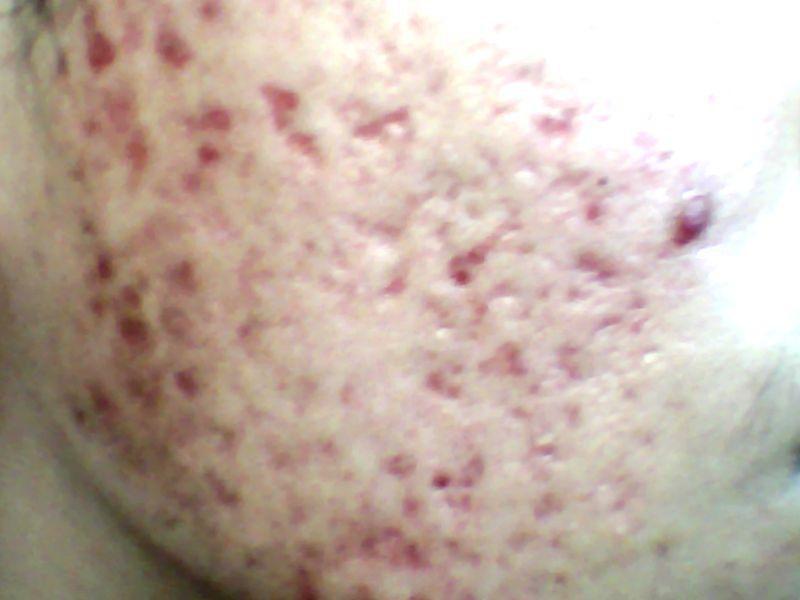 left cheeks