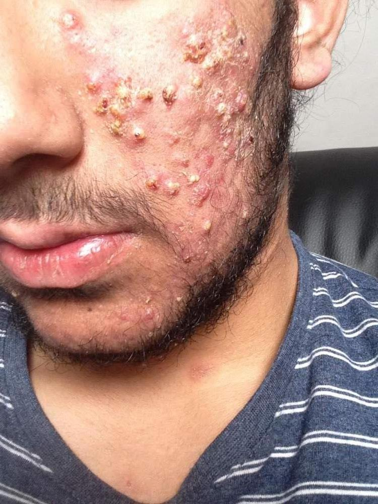 1 month after accutane