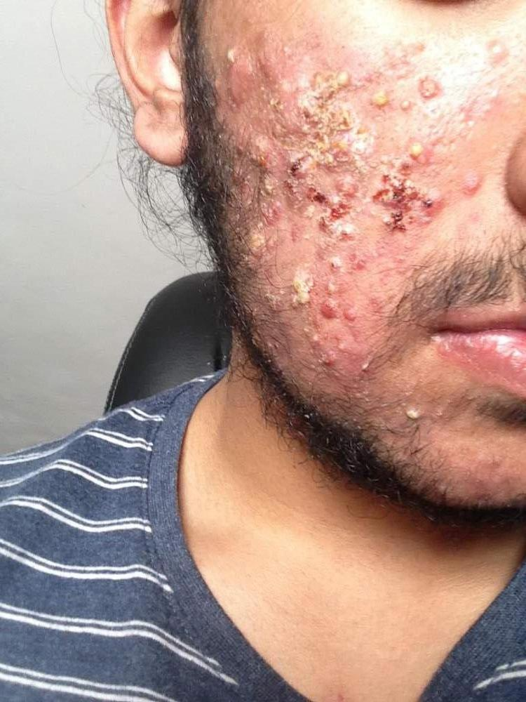 1month after accutane