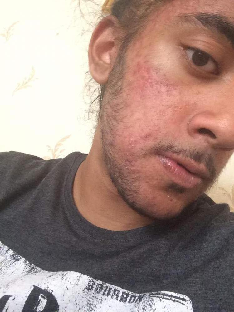 Acne clearing up