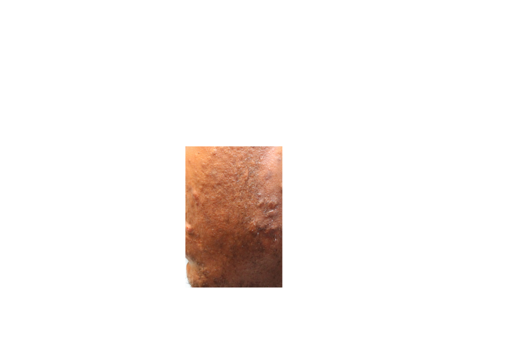 IMG 1343