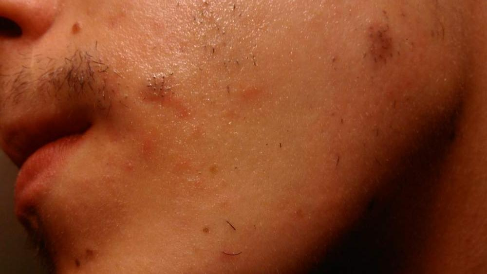 scar type/treatment?