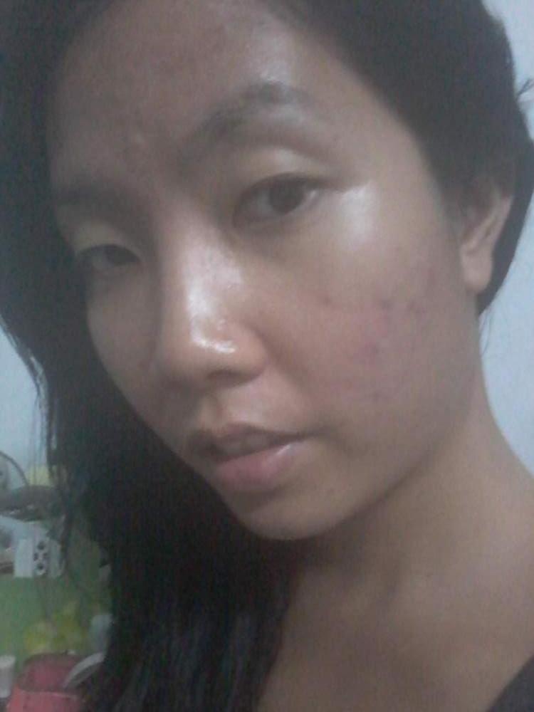 left cheek post excision