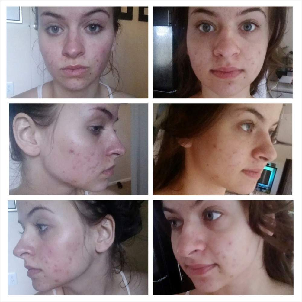 After 1 night of microderm and dark spot correcting