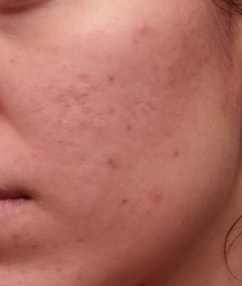 left side of my cheek