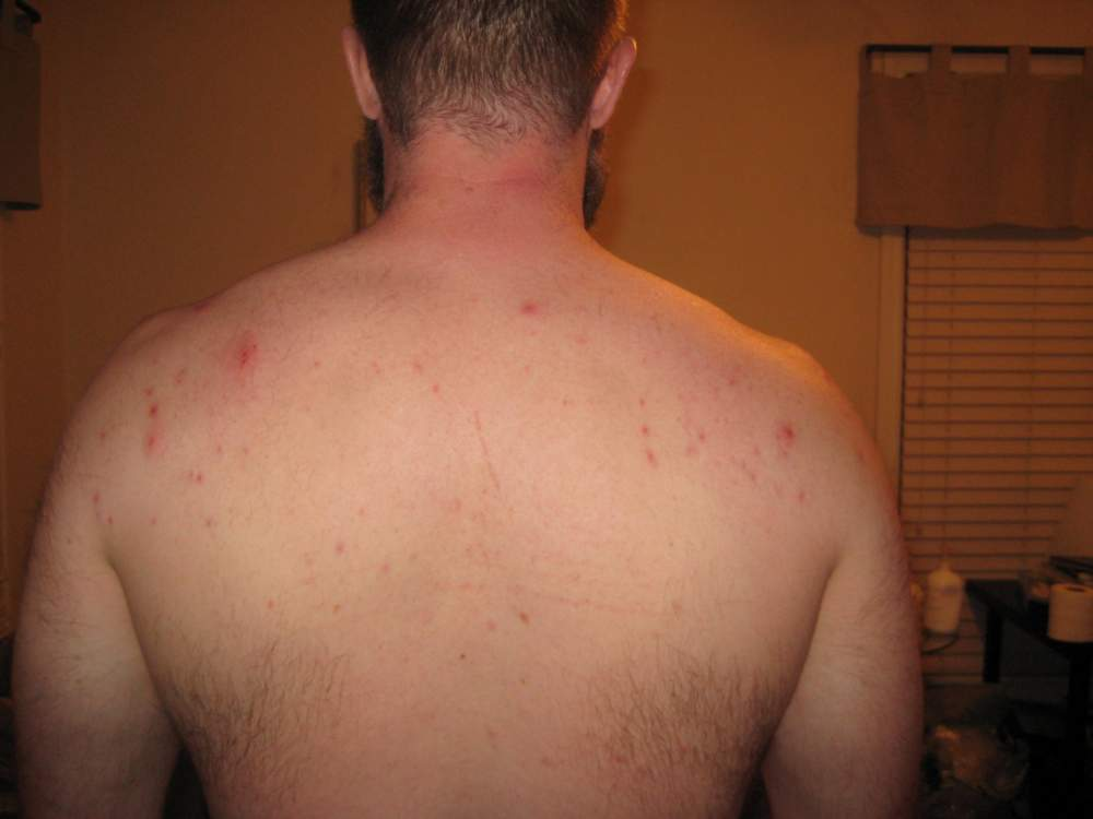 Back Acne - from start to clear