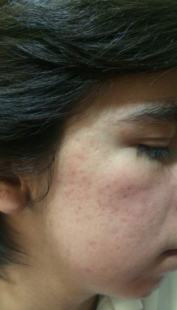 Help scars