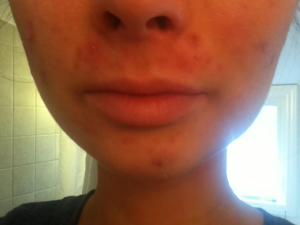 Day 7 - chin