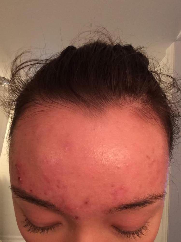 Week 2 day 5 - forehead