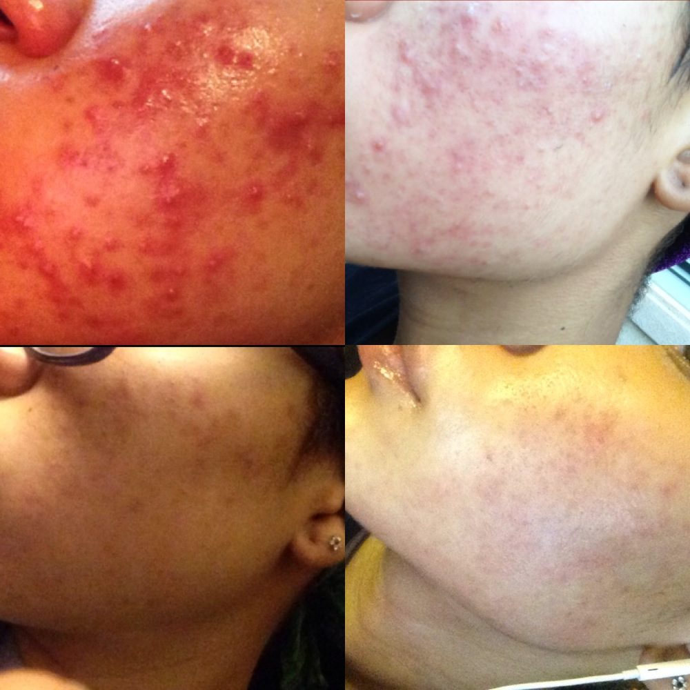My Acne Journey (June 2014 - Sept 2014)