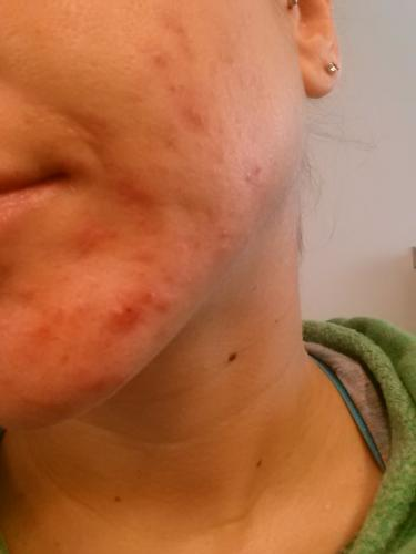 Accutane Journey (Absorica / Claravis)