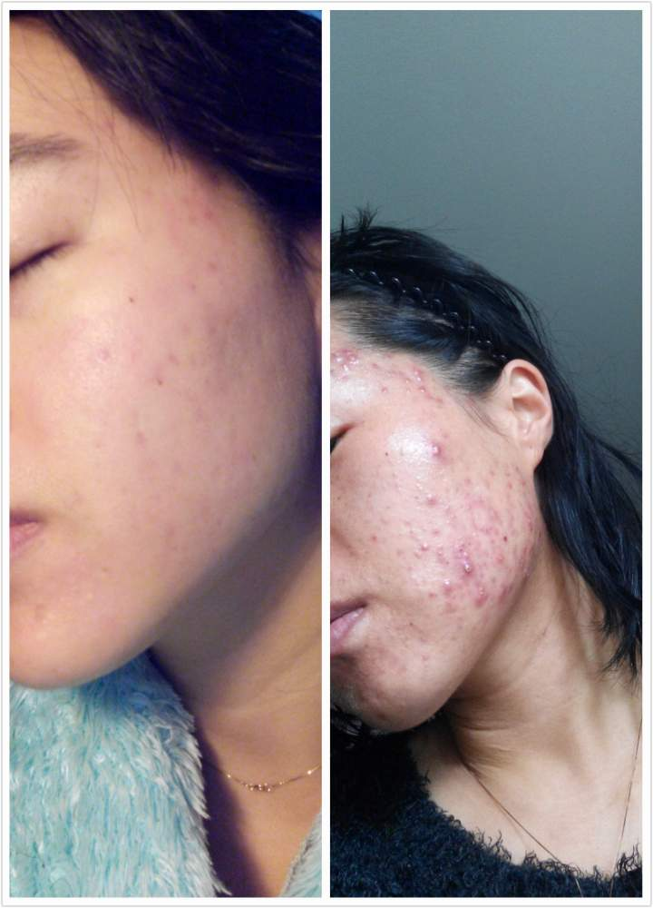 acne.org is works very well