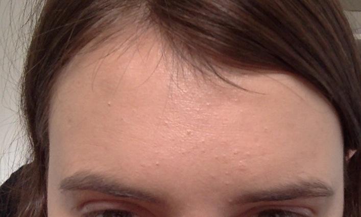 forehead bumps