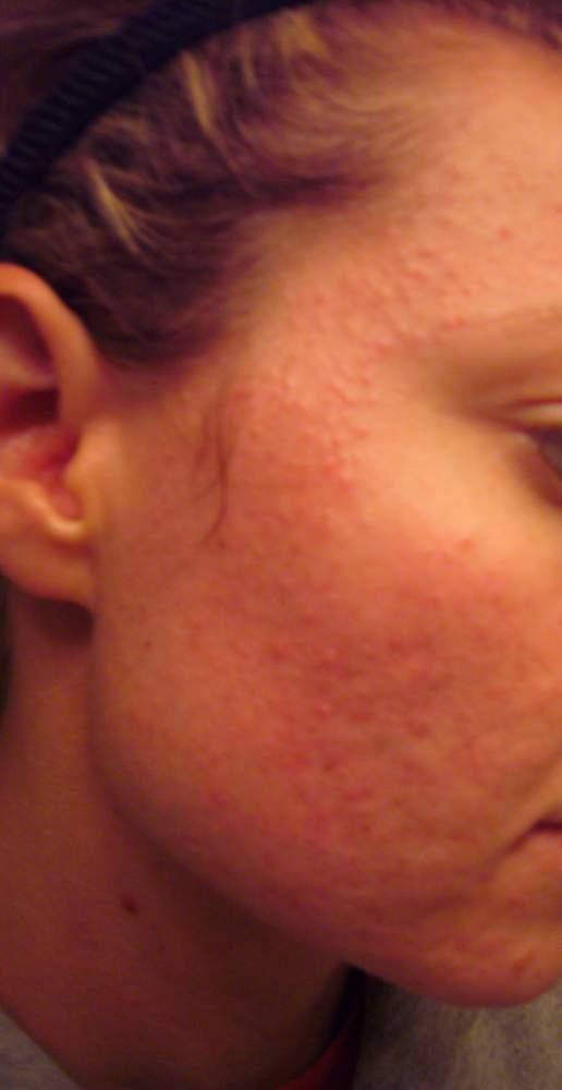 left side of face