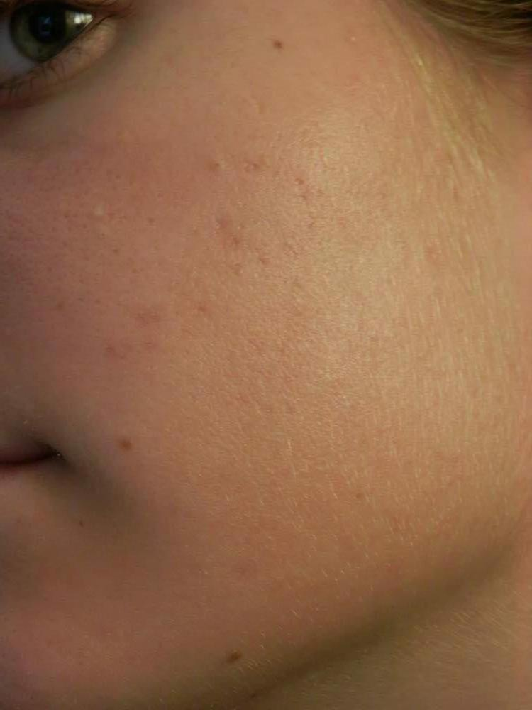 My Results on the Acne.org Regimen
