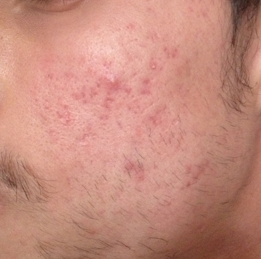 After accutane