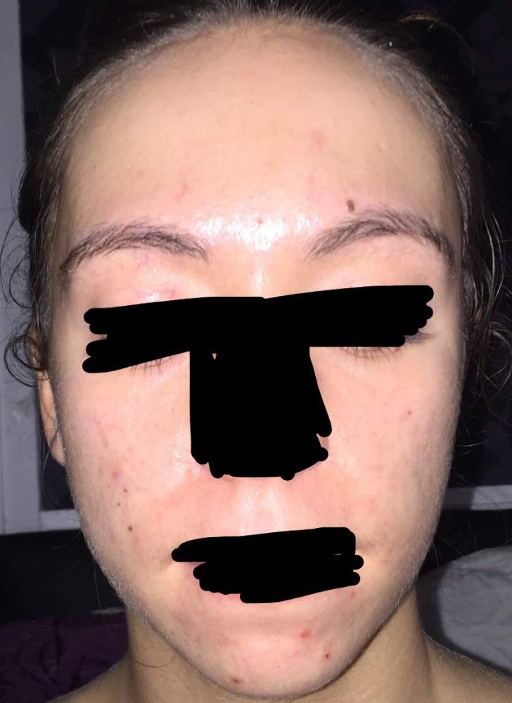 Accutane journey in pictures