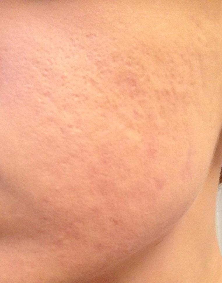 Left side scarring