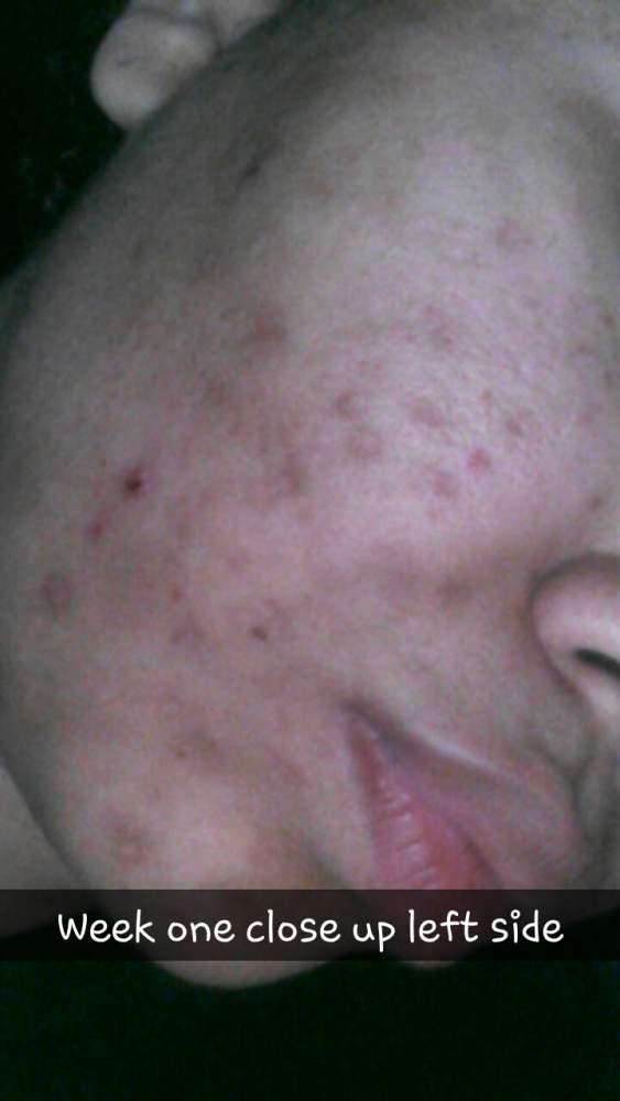 week one close up left side