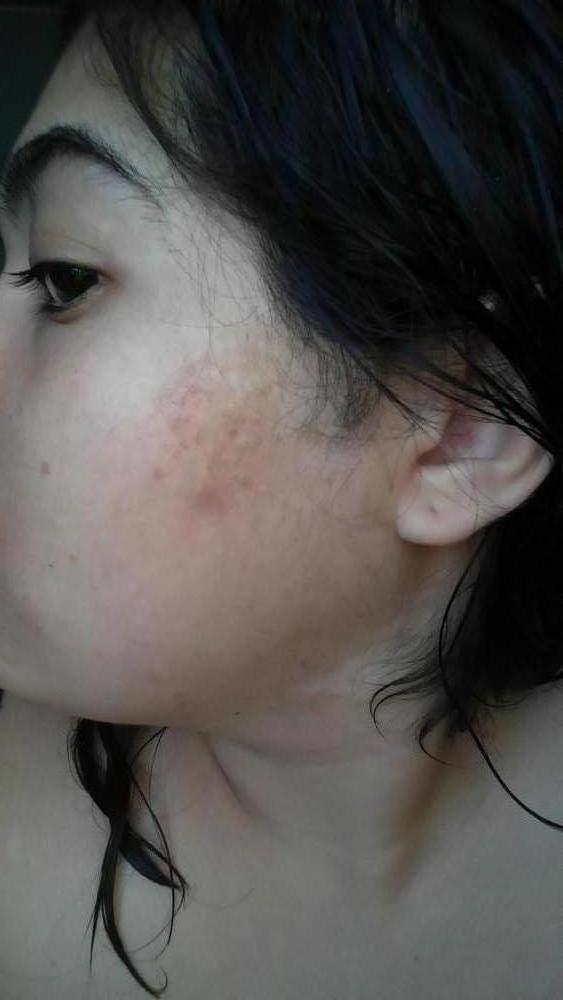 Hyperpigmentation Logs Burns Tea Tree Oil Burn Pictures