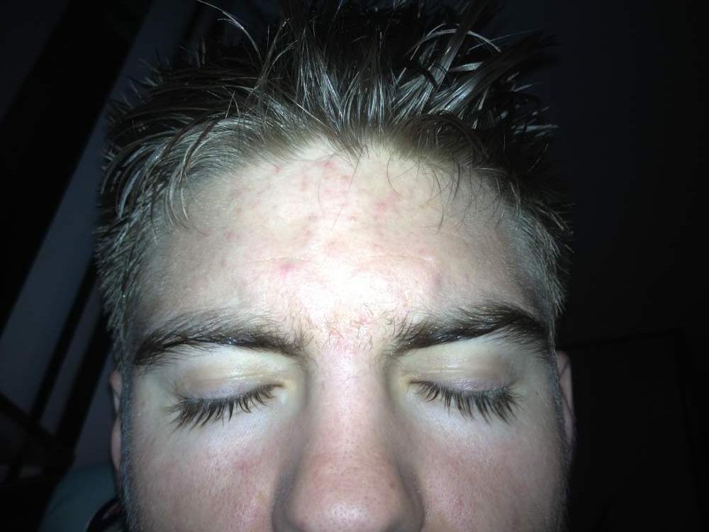 Acne: light case