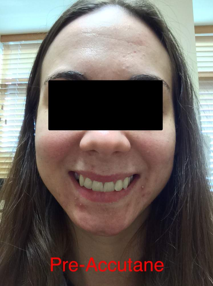Day 1: Pre-Accutane face
