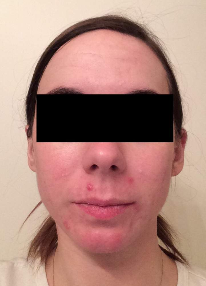 Day 27 of Accutane