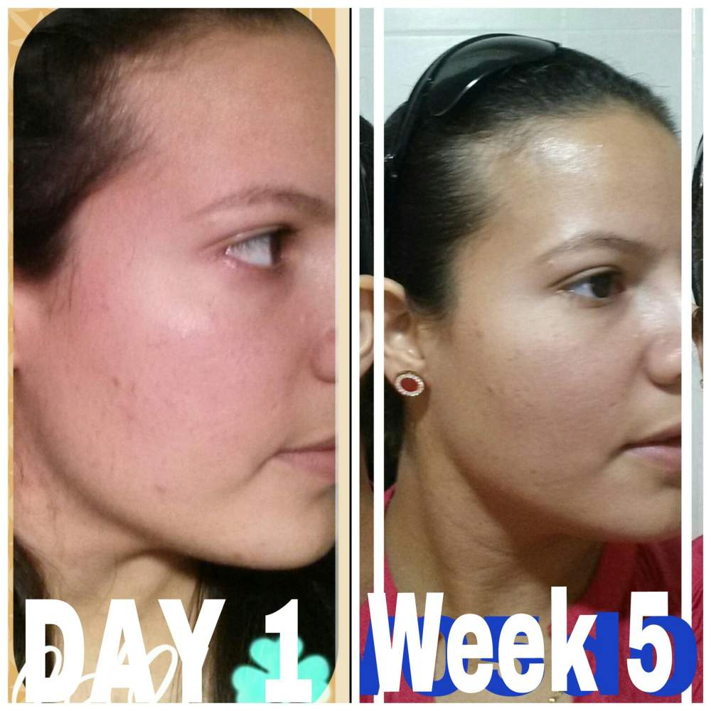 Month 1 DONE!!!