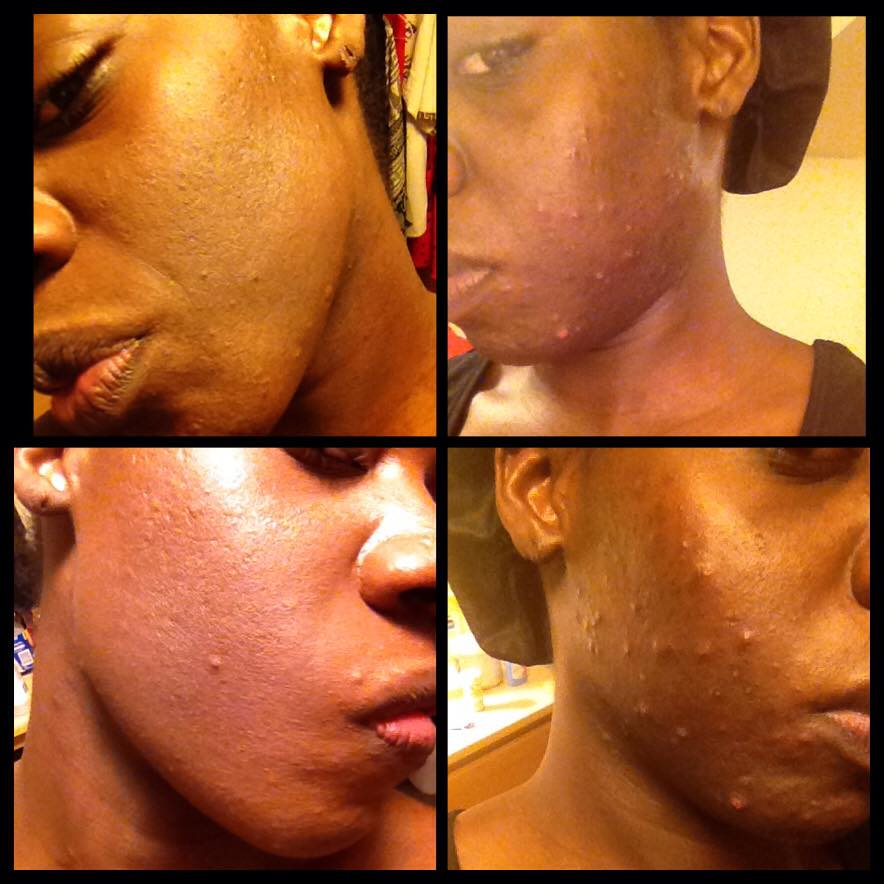 ONE MONTH ON THE ACNE.ORG REGIMEN