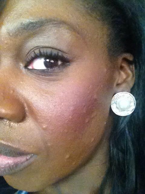 My Adult Acne Journey