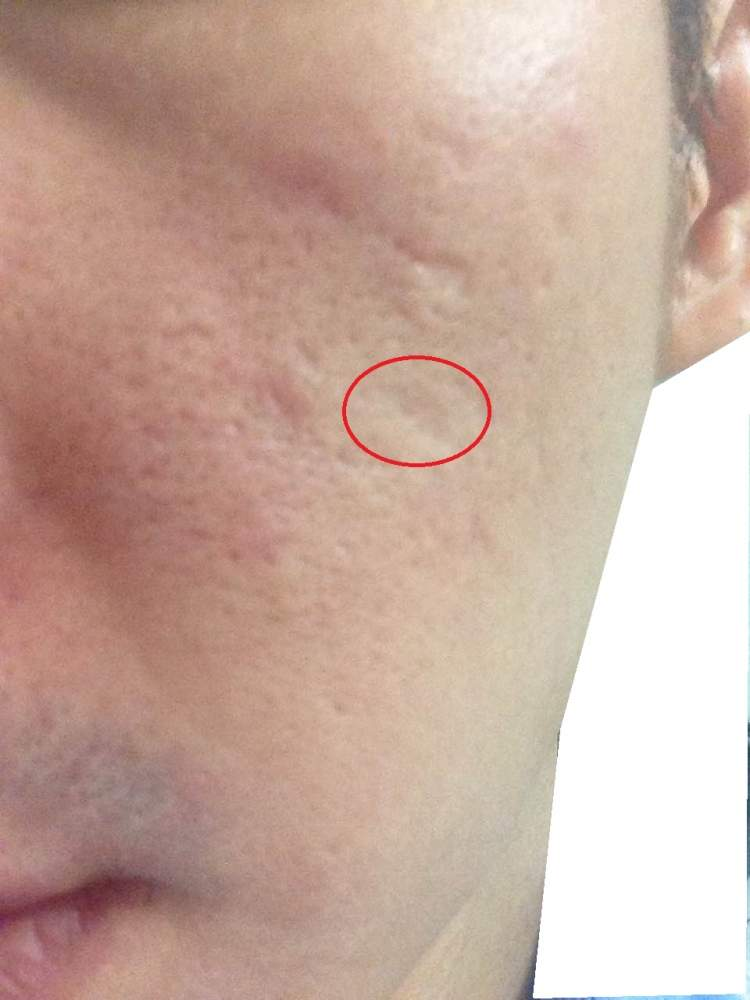 Deep rolling scar due to large cyst acne
