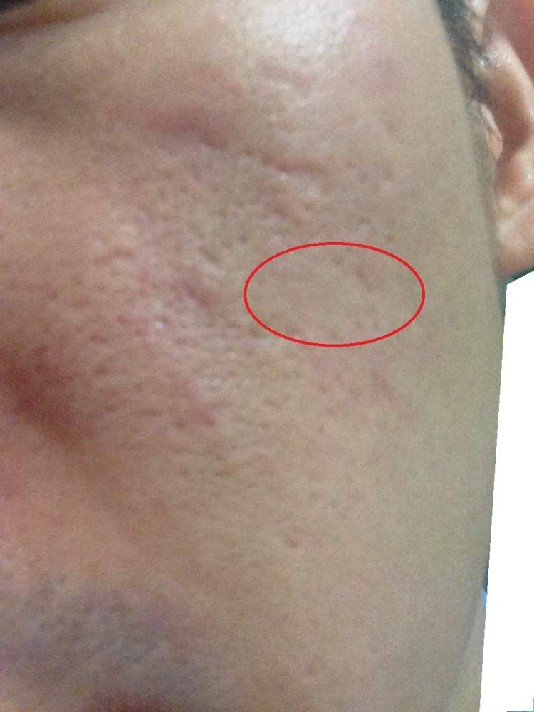 After that big rolling scar is covered up by dermaflage