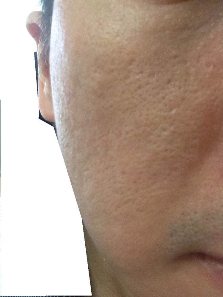 After covered scar with Dermaflage and put concealer (20 minutes for whole right cheek)