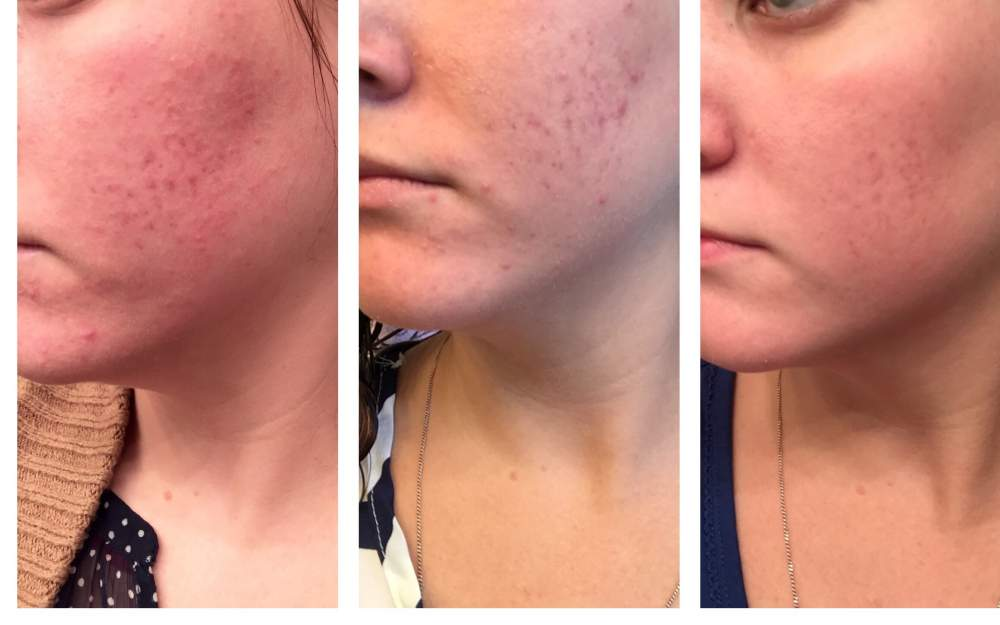 4.5 months - Epiduo - Pictures & Videos - Acne.org Community