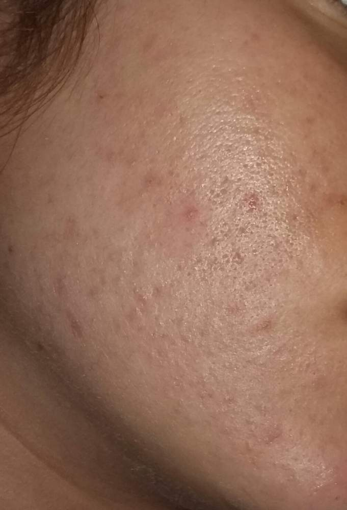 Starting accutane: right cheek