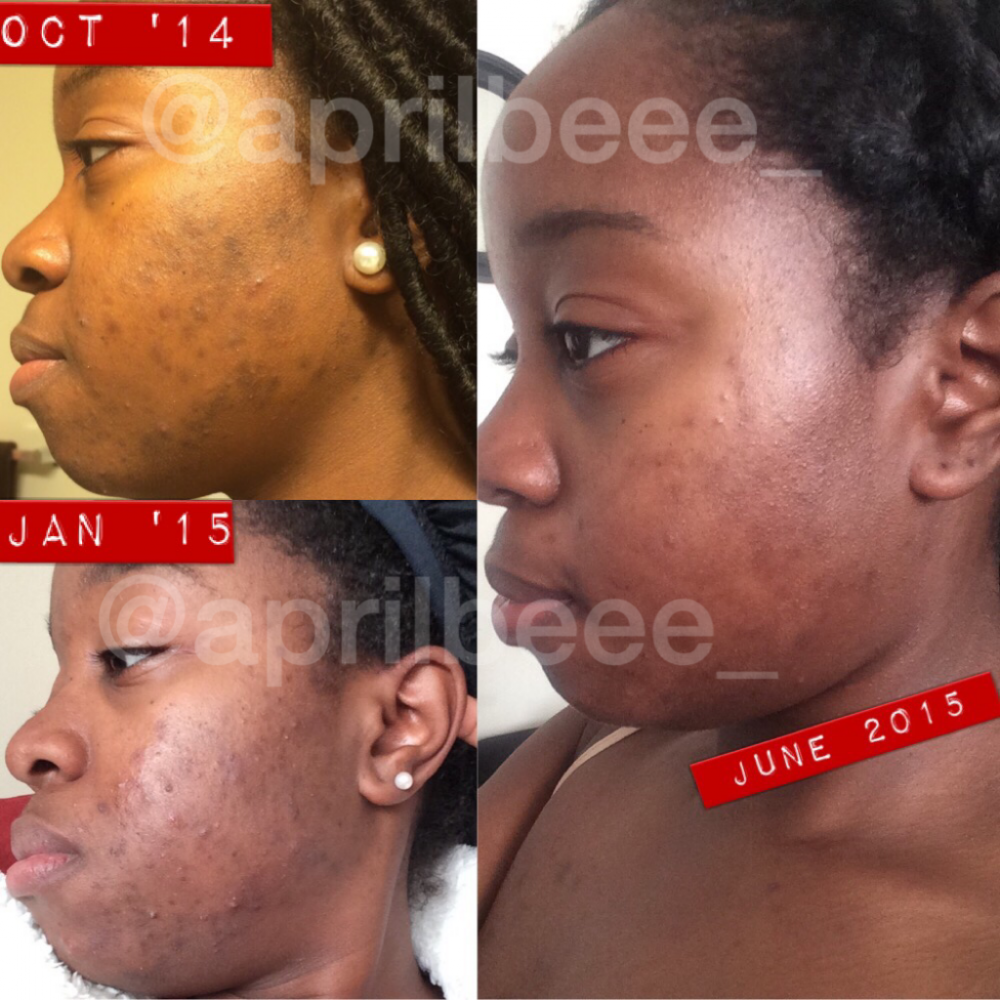 8 Month Comparison (left side)