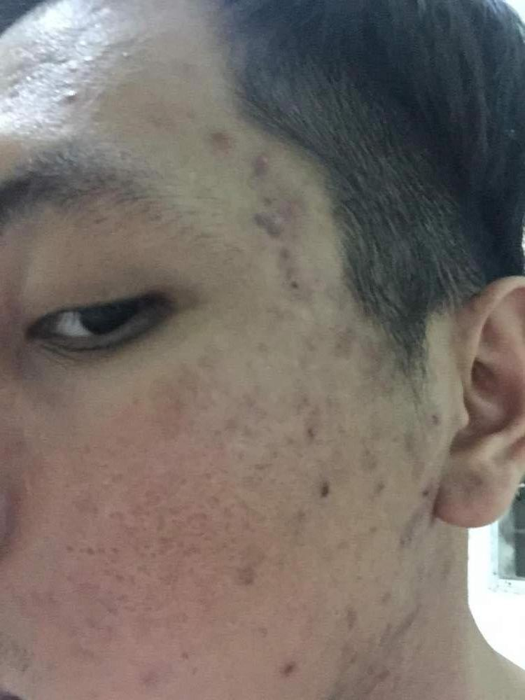 After using acne.org 1 month