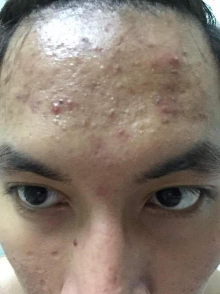 Before using acne.org
