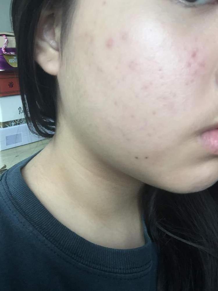 Week 6 - Right cheek