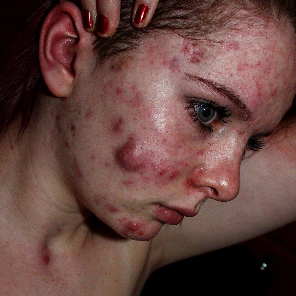 how to stop getting cystic acne