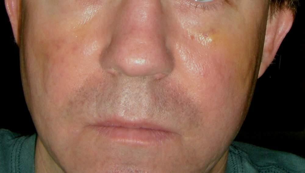 Post-Subcision Photos - Procedure #4