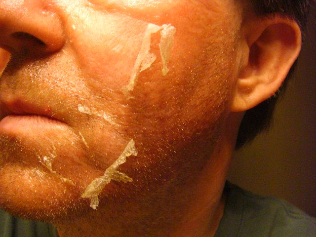 20150624 Day Four   Right Cheek Peeling