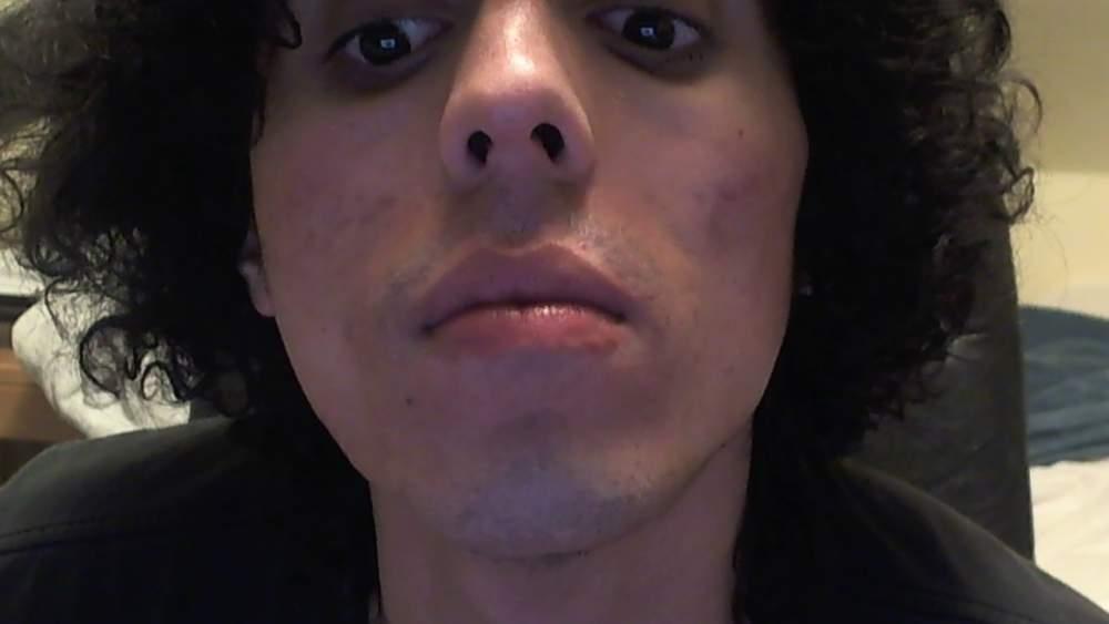 Derma roller acne scars.