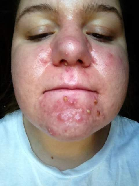 Prescription Logs Tretinoin 1 Painful Tretinoin